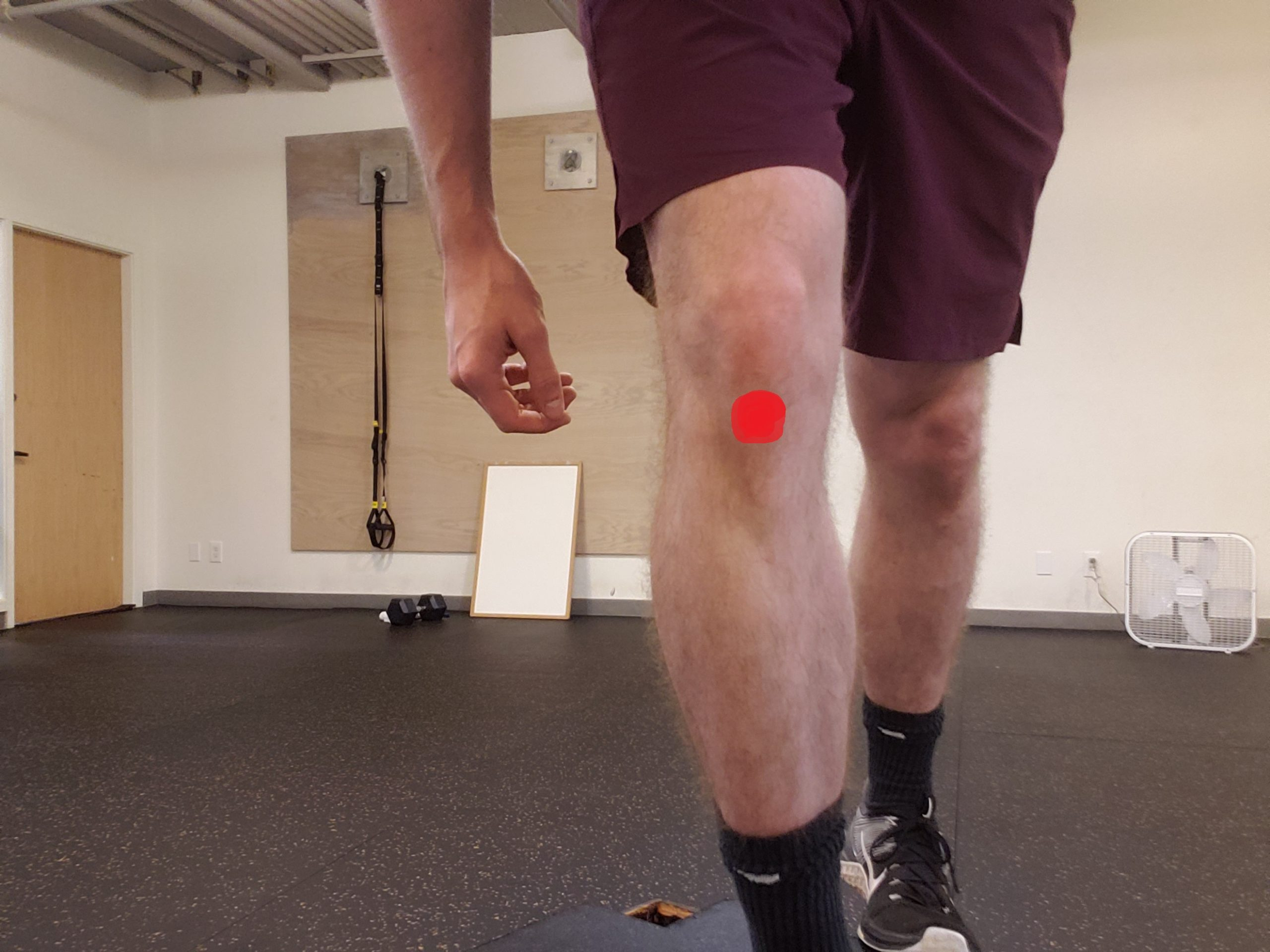 Jumper's knee pain in front of the knee at inferior pole of the patella. Also known as patellar tendinopathy or patellar tendinitis